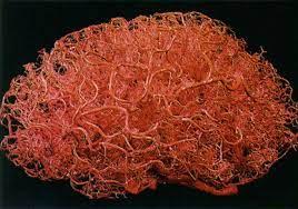 Relación entre la barrera hematoencefálica y enfermedades neurodegenerativas